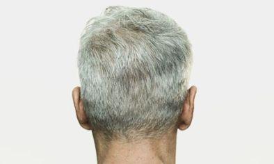 Gray hair1